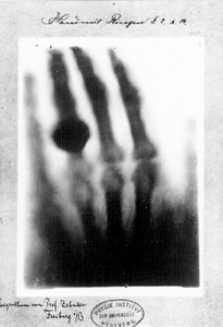 the hand of Frau Röntgen